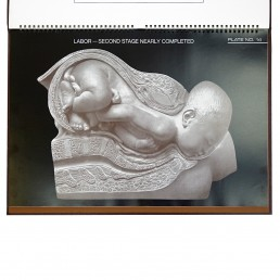 Birth Atlas by the Maternity Center Association in New York